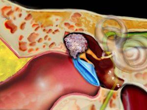 Cholesteatoma Surgery
