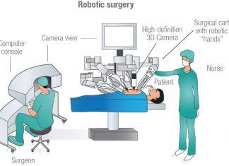 Robotc Surgery
