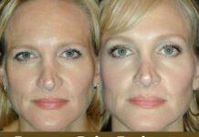 Botox to Raise Eyebrows