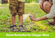Home Remedies for Chigger Bites