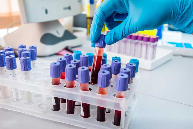 people with blood group a are at a high risk