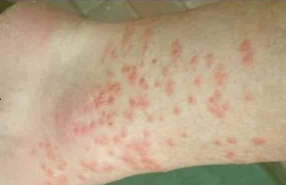 what do chigger bites look like