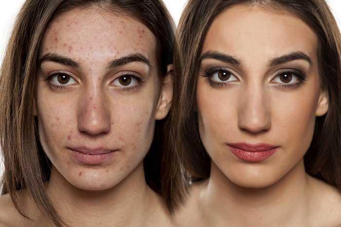 Acne Face Treatment