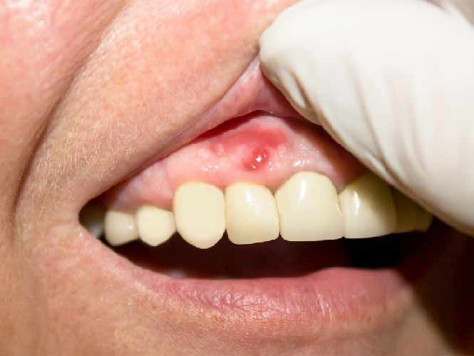 bump on gums not painful