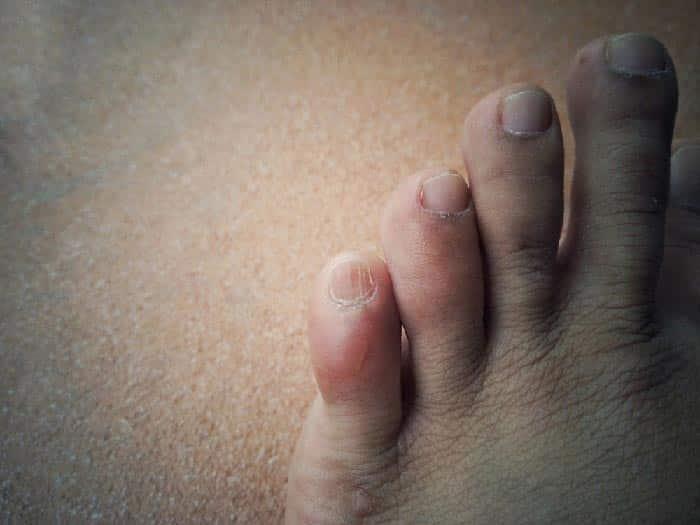 skin swelling