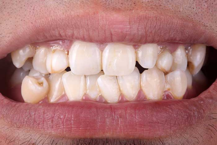 Dos And Dont S After Wisdom Tooth Extraction You Must Know