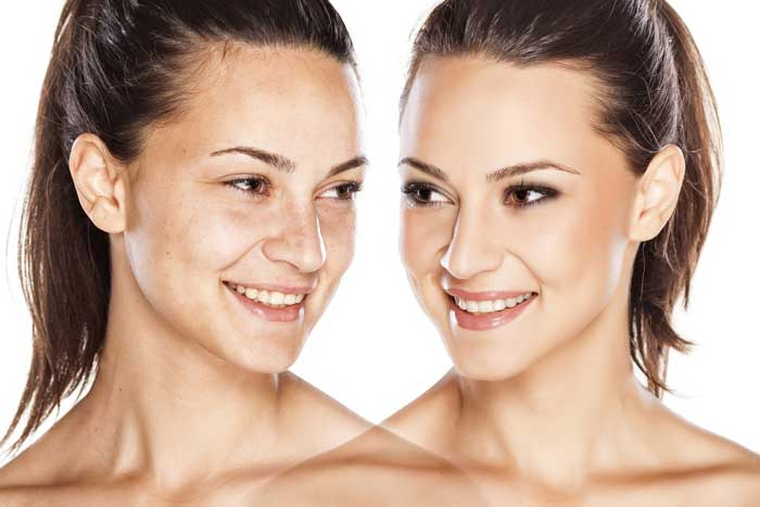 How to Lighten Skin Overnight? 14 Amazing Home Remedies